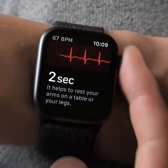apple watch 4 con ecg